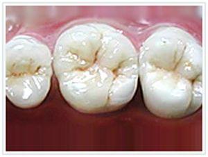 審美歯科 症例写真