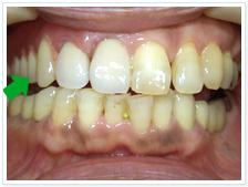 金属バネ(クラスプ)がない入れ歯 症例写真