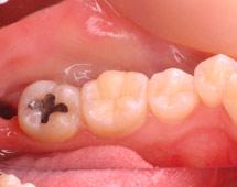 一般歯科 --- 虫歯治療 --- 症例写真